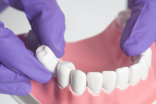 emergency tooth extraction in Wilsonville
